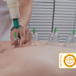 Cupping Therapy CPD Course - May 59