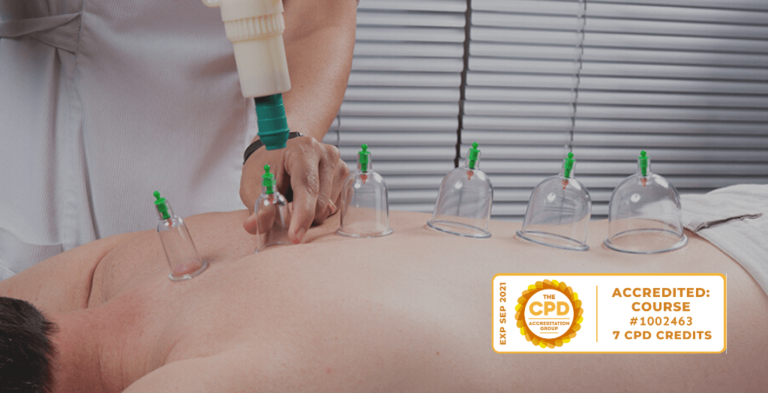 Dry Cupping Therapy CPD (July 23rd) 7